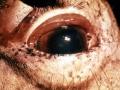 Ödematösa ögonlock