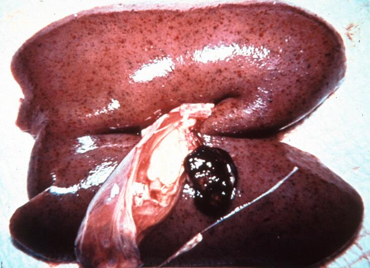 Blödningar njure och lymfknuta