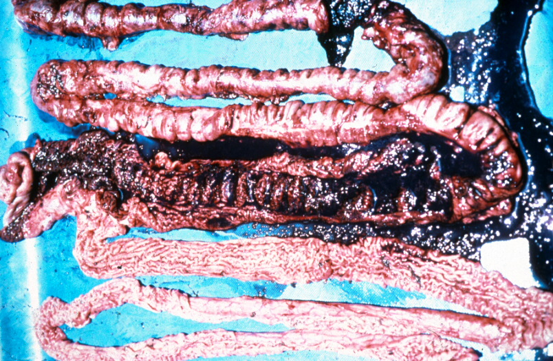 Omfattande intestinala blödningar.