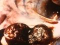 Hemorrhagiska lymfknutor