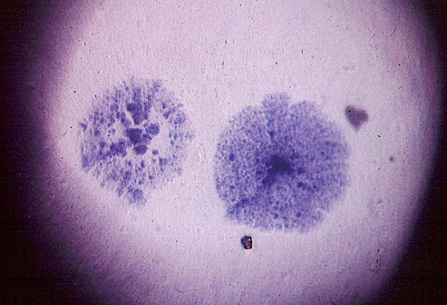 Mykoplasma mycoides