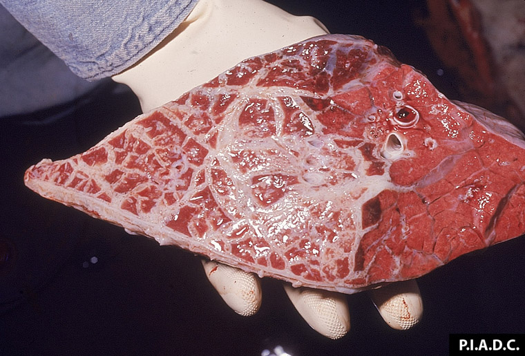 Fibrinös peumoni/normal lungvävnad