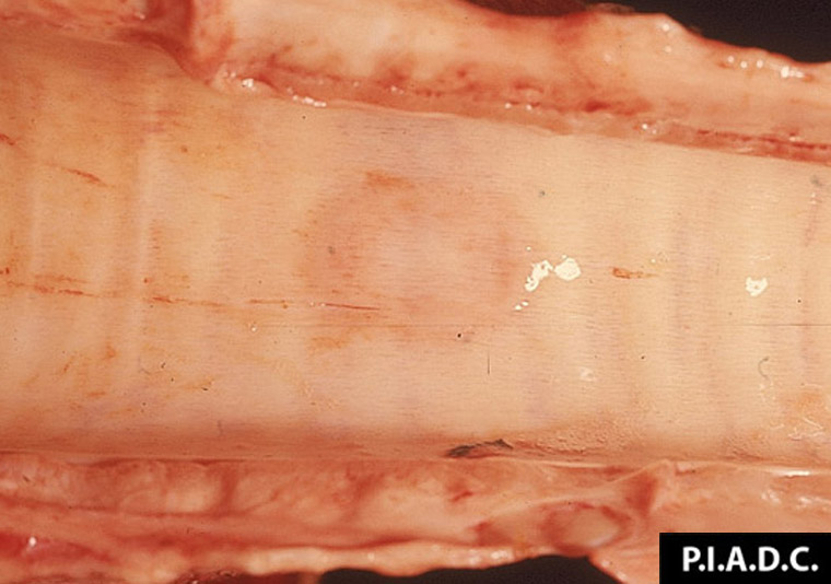 Tidig noduli i trachea