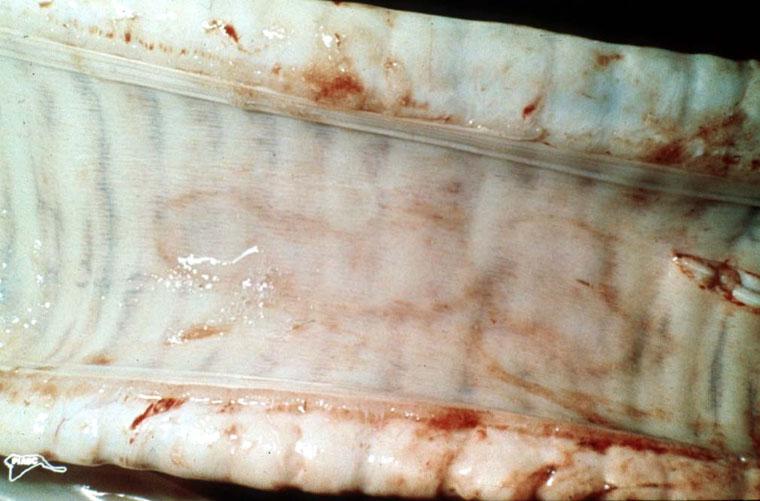 Tidig lesion i trachea