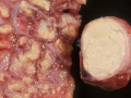 Tuberkler i lunga och lymfknuta
