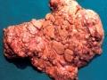 Tuberkler, lunga